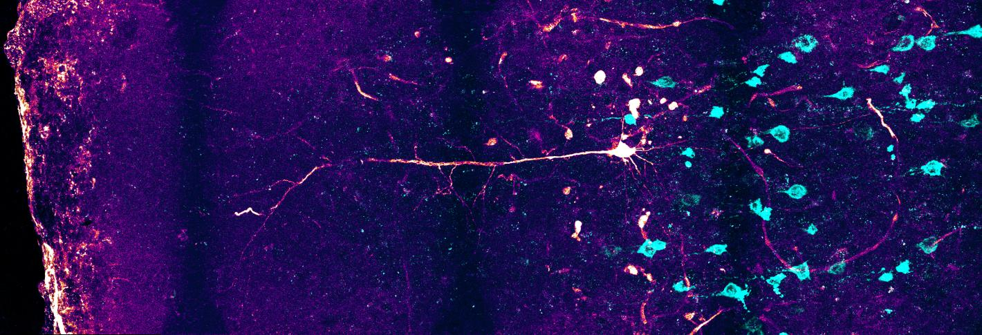 Colorful image of a neuron in a brain slice