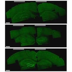 A brain slice that shows the hippocampus cells that were activated by the new stimulation technique (bottom image, lighter green areas on the left)