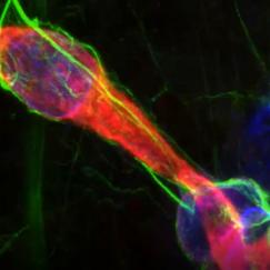 An image derived from MAP technology shows interaction between an astrocyte and endothelial tissue