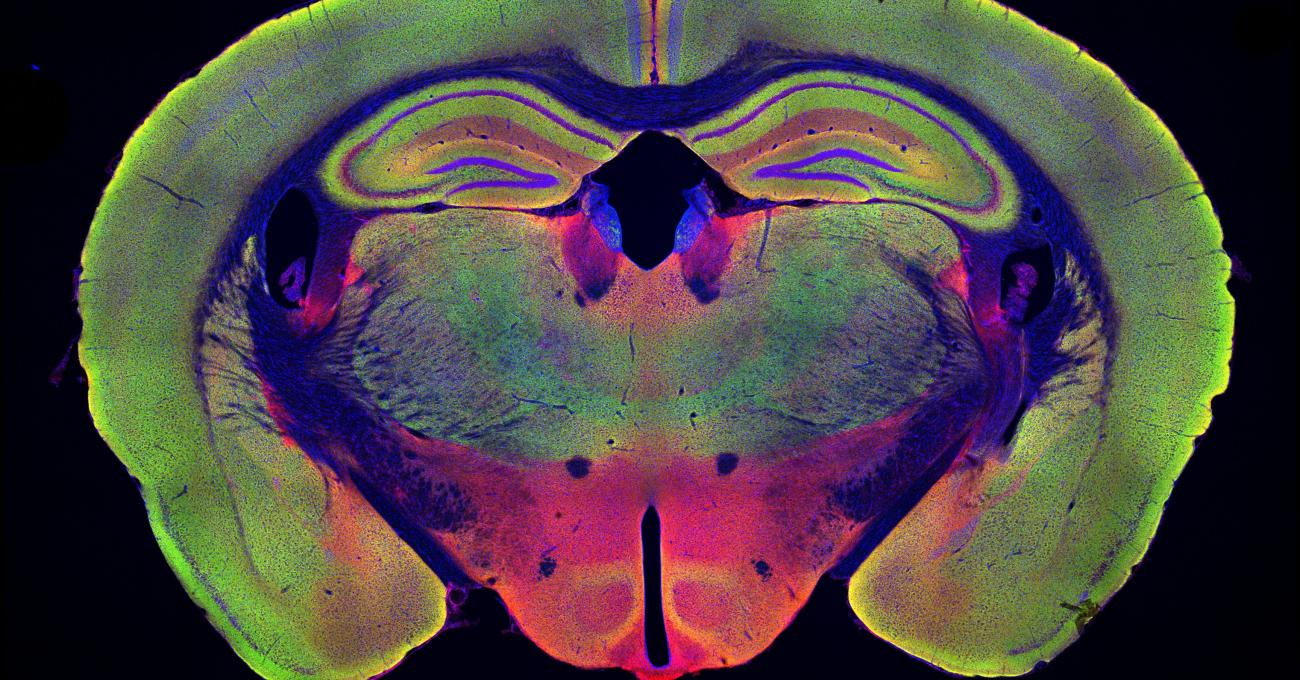 Color image of brain slice