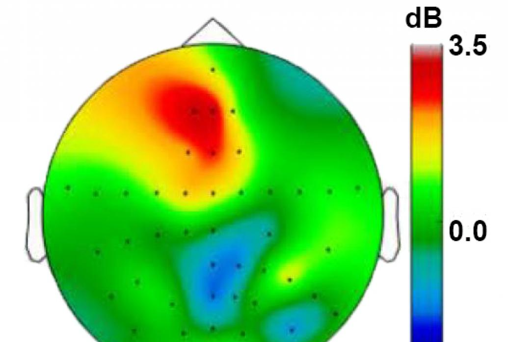 An outline of the top view of a head shows the brain filled in with colors corresponding to theta rhythm strength