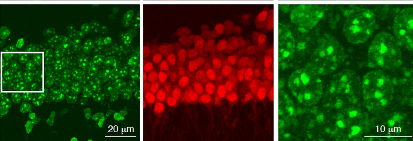 A six panel grid showing neurons stained red or green