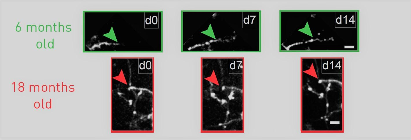 two sets of three images each show growth, or lack thereof, of dendrites beyond a marker set at day zero in 6-month and 18-month old mice