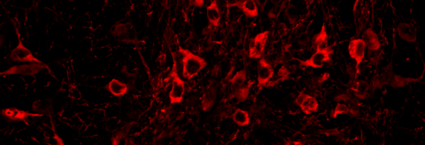 Reddish stained cells appear sprinkled over a black background