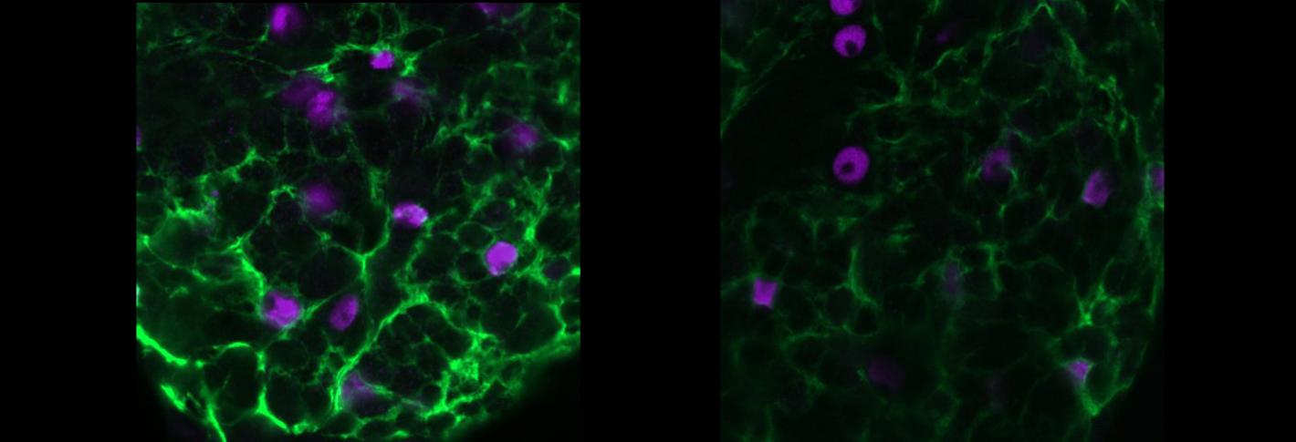 A side by side comparison shows blue cells amid wisps of light green sandman