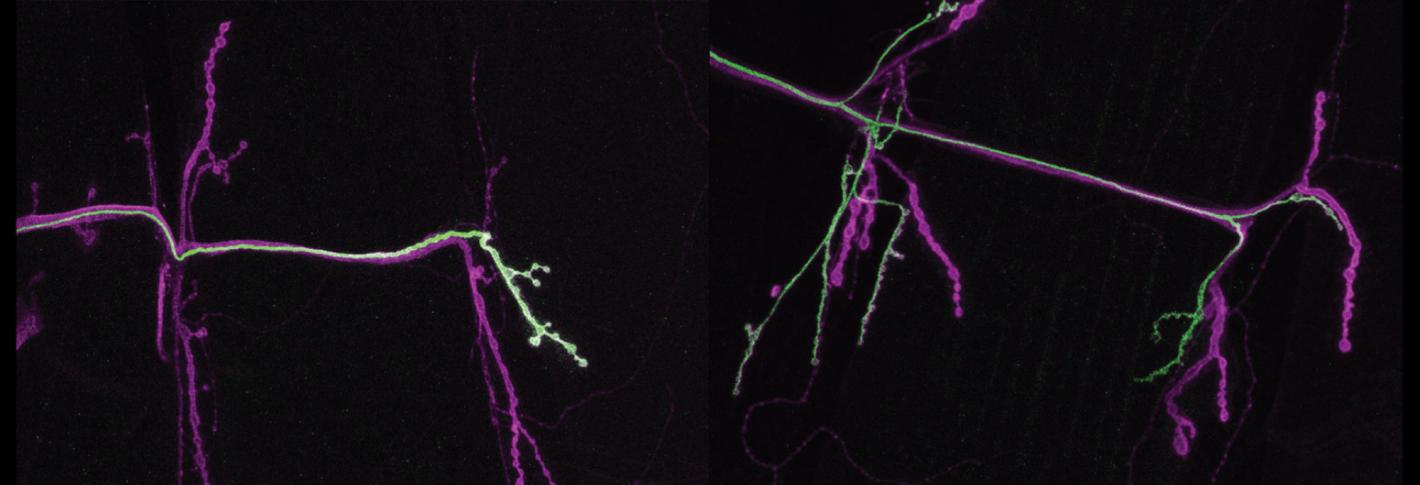 In panels side by side, two twig-like neurons stained green stretch across a black background. The one on the right is the more branchy of the two.