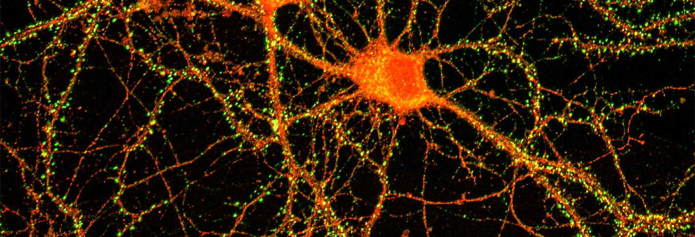 Two neurons next to one another (red)
