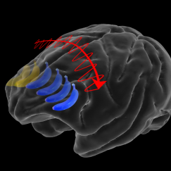 Superimposed on a semitransparent gray brain is an sequence of bananas and an arrow going from its right to left