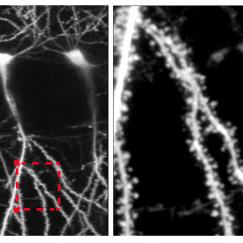 Two black and white panels show a neuron  on the left and a spiny zoomed-in section of its dendrites on the right