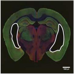 Three mouse brains in a row. White outlines show ventricles, or dark open spaces within
