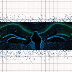 A blusih tinted image shows fluorescently labeled mouse hippocampus tissue supreposed over a sheet of graph paper with patterns of blue dots