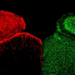The mouse visual cortex with astrocytes stained red on the left and neurons stained green on the right.