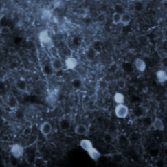 A tangle of neurons, colored ice blue, shimmer in the PPC of a mouse.