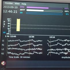 An operating room vital signs monitor shows EEG readings