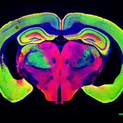 Slice through a mouse brain shows huge ventricles opened up by neurodegeneration in a p25 mouse